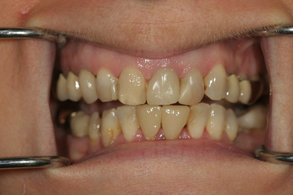 Dental Veneers Sutton Before