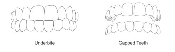 Invisalign gap teeth underbite Sutton Surry